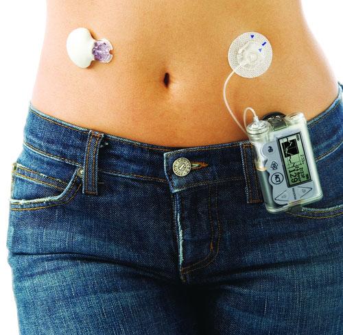 применение инсулиновой помпа