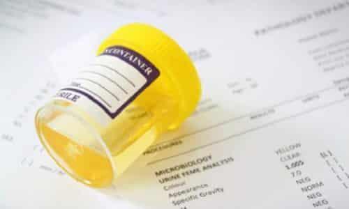 При подозрении на воспаление стенок мочевого пузыря необходимо сдать общий анализ мочи