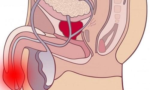 Если у мужчины появилась резь в головке, а также слизистые или гнойные выделения, это свидетельствует о развитии уретрита