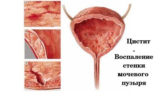 Лечение цистита в период климакса не обходиться без заместительной гормонотерапии