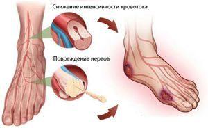 поврежденные нервы на ногах