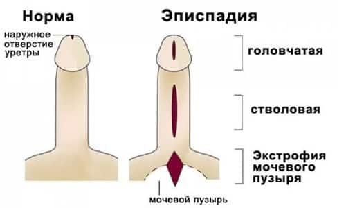 Аномальное строение мочевыводящих путей называется эписпадией