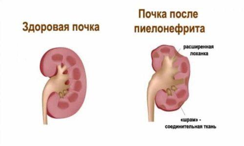 При пиелонефрите страдают почки, что тоже может стать причиной обесцвечивания мочи