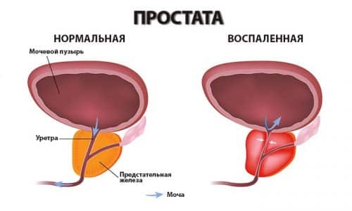 Дискомфорт при мочеиспускании наблюдается при таких патологиях, как простатит и аденома простаты